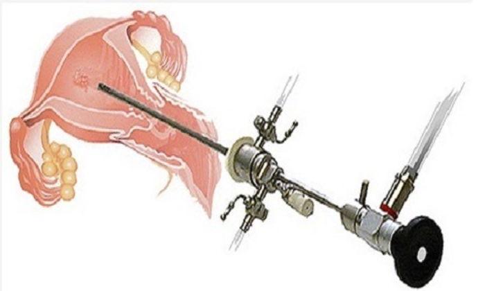 Histeroskopi İşlemi Nedir ?