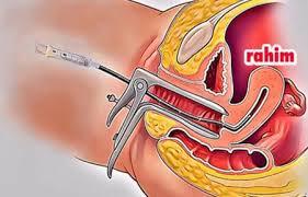 Kürtaj Olmak